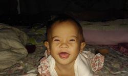 Bebê com síndrome de Down e má formação no coração é diagnosticada com Covid-19 em Vilhena, RO
